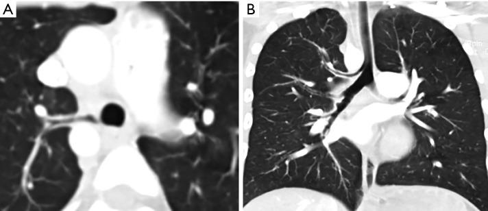 trachealis papillomatosis ct