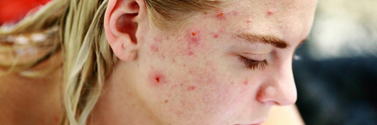 A 3 legnagyobb tévhit a pattanásos bőr ápolásával kapcsolatban | Gyerekmosoly Egészségközpont