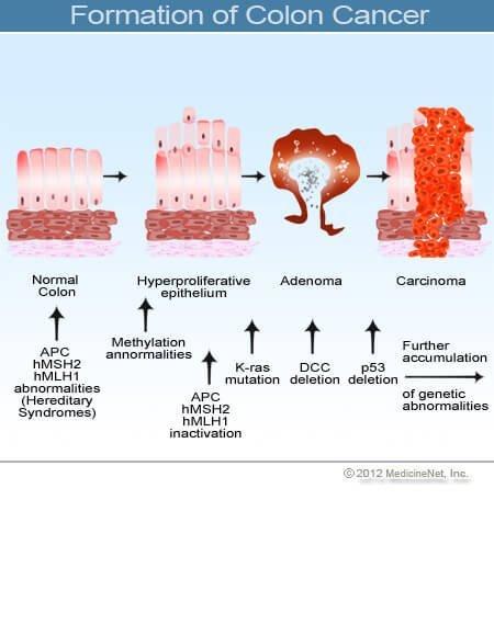 rákbiológia jóindulatú daganatok)