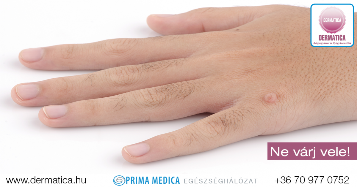 papillomavírus szemölcsök kezét