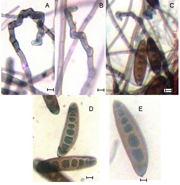 morfológus helminthosporium sp