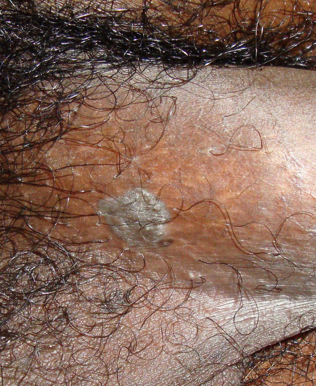 condyloma acuminata és szülés)