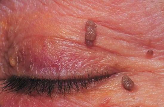 intraductalis papilloma birads 4a