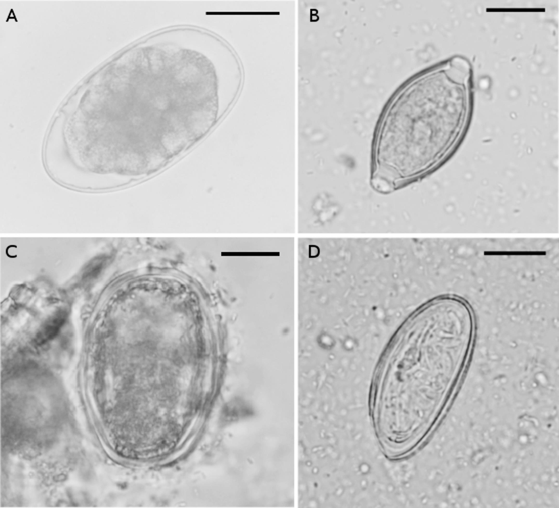 Pinworms kezelése: tünetek és gyógyszerek Pinworm beöntés