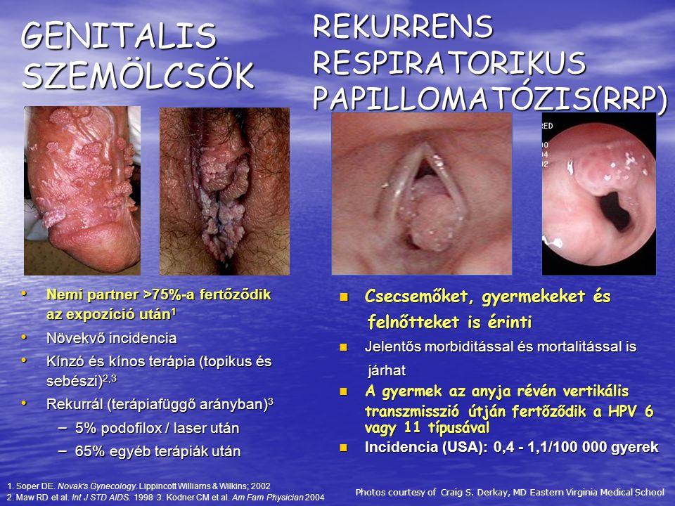 genitális papilloma vírus átadása