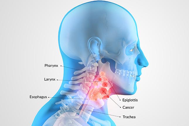 nyaki rák elemzése
