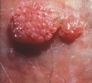 Papillomavirus szemolcs
