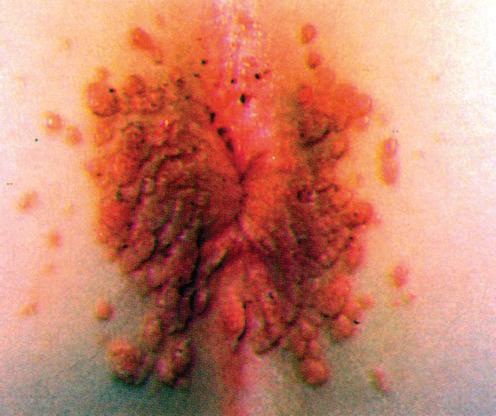 condyloma acuminatum hisztopatológia)