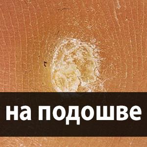 szemölcskezelő csizma)