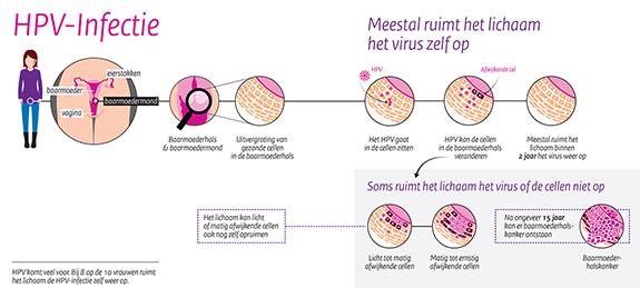 hpv virus rivm)