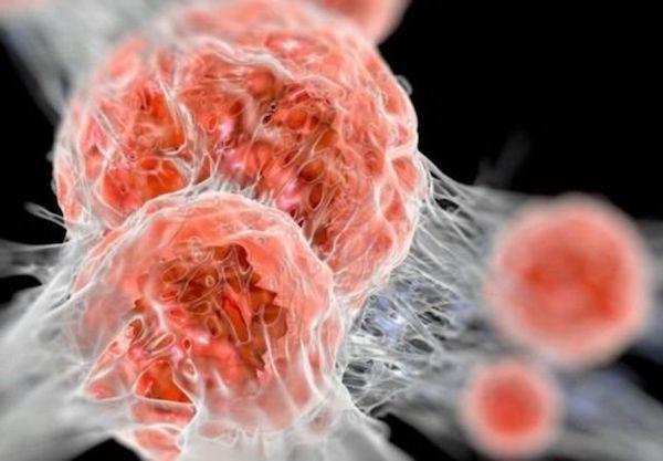 hormonális rákos sejt)
