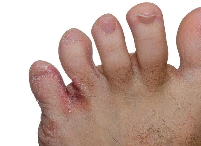 a lábujjak között rohad