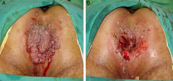 FOLYAMATOS ORVOSTOVÁBBKÉPZÉS. A nô nemi szervek HPV-fertôzéseinek megjelenési formái