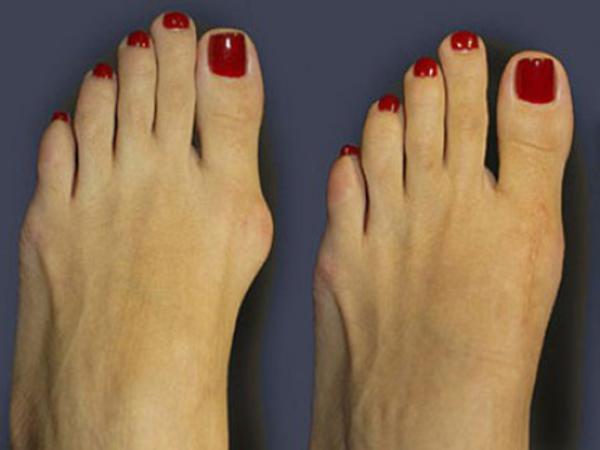 cryopharma a lábak számára)