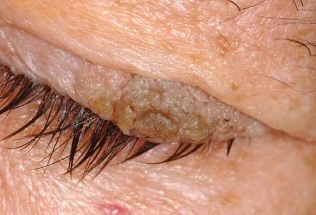uvularis papilloma cie 10 paraziták kezelése pirula vélemények