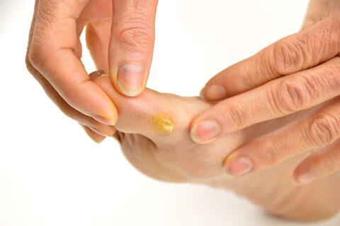 a tyúkszem természetes kezelése az ujjak között)