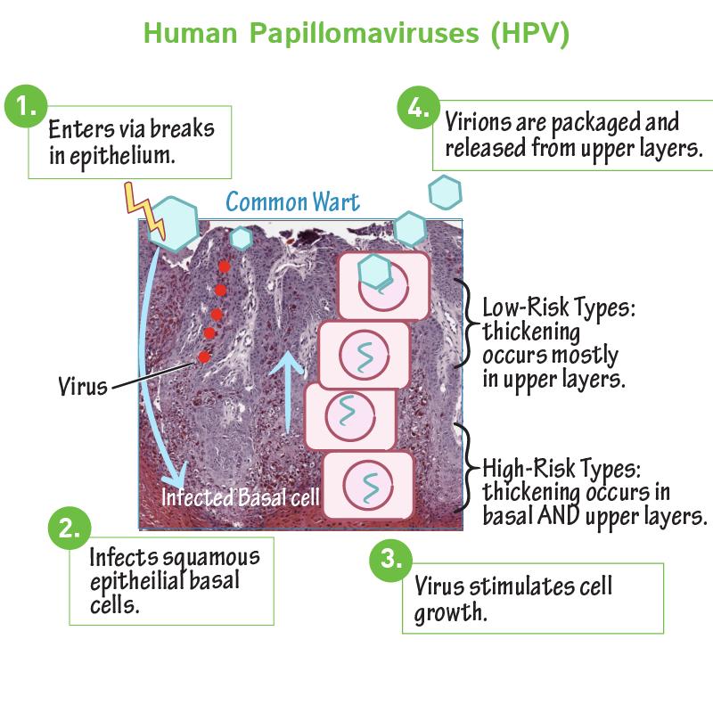 l papillomavírus tünete)