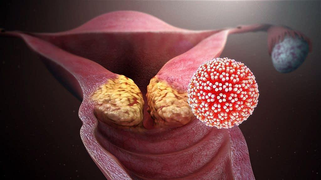 papilloma vírussal sterilizált ember