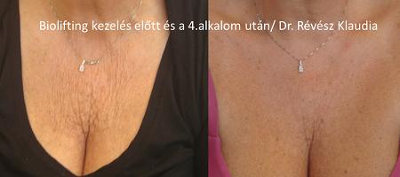 Szemölcsök, bőrkinövések eltávolítása - SkinCare