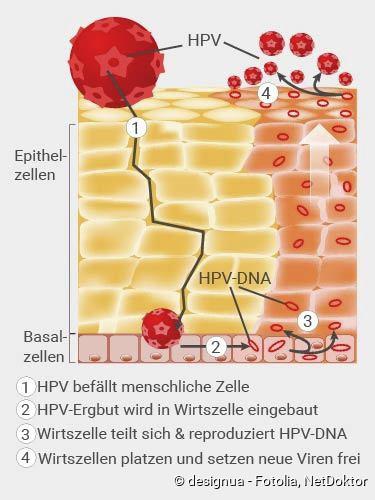 hpv vírus wie bekommt man das