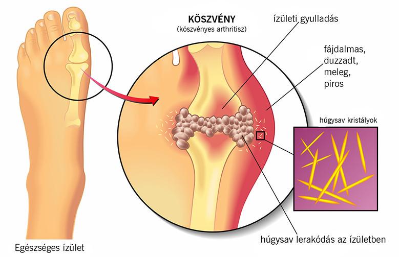 máj fasciola kezelés)