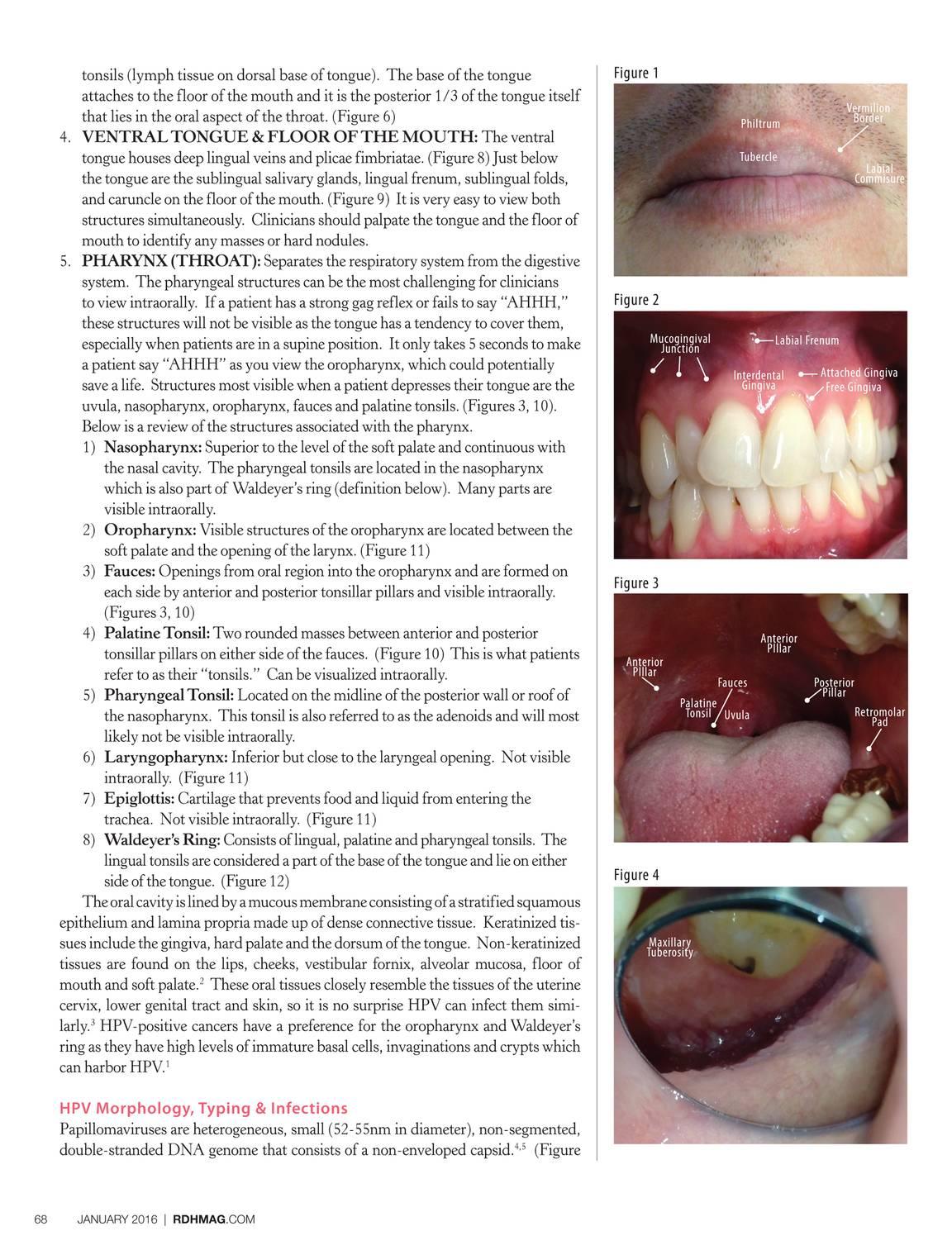 papillomavírus uvula papillomavírus és fájdalom a közösülés során