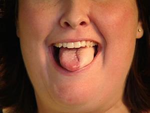 papillomavírus nyelvrák