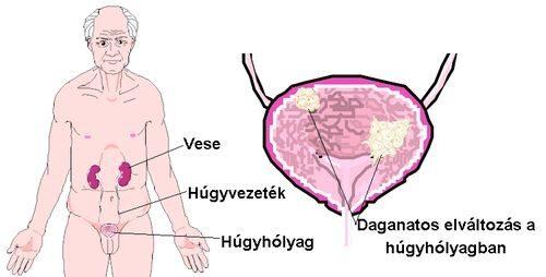 Húgycső, húgyhólyag daganatok, húgyhólyagrák tünetei, kivizsgálása