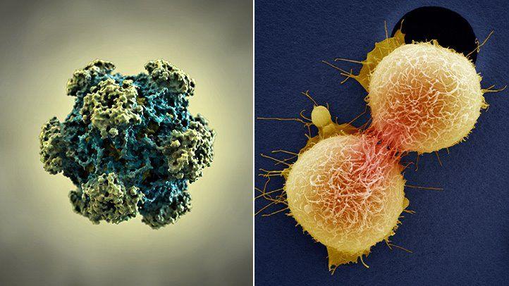 Miben segítünk Önnek HPV-fertőzés esetén? - Istenhegyi Géndiagnosztikai Centrum