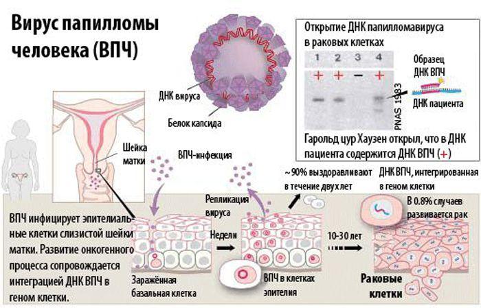 papilloma vírus pozitívról negatívra