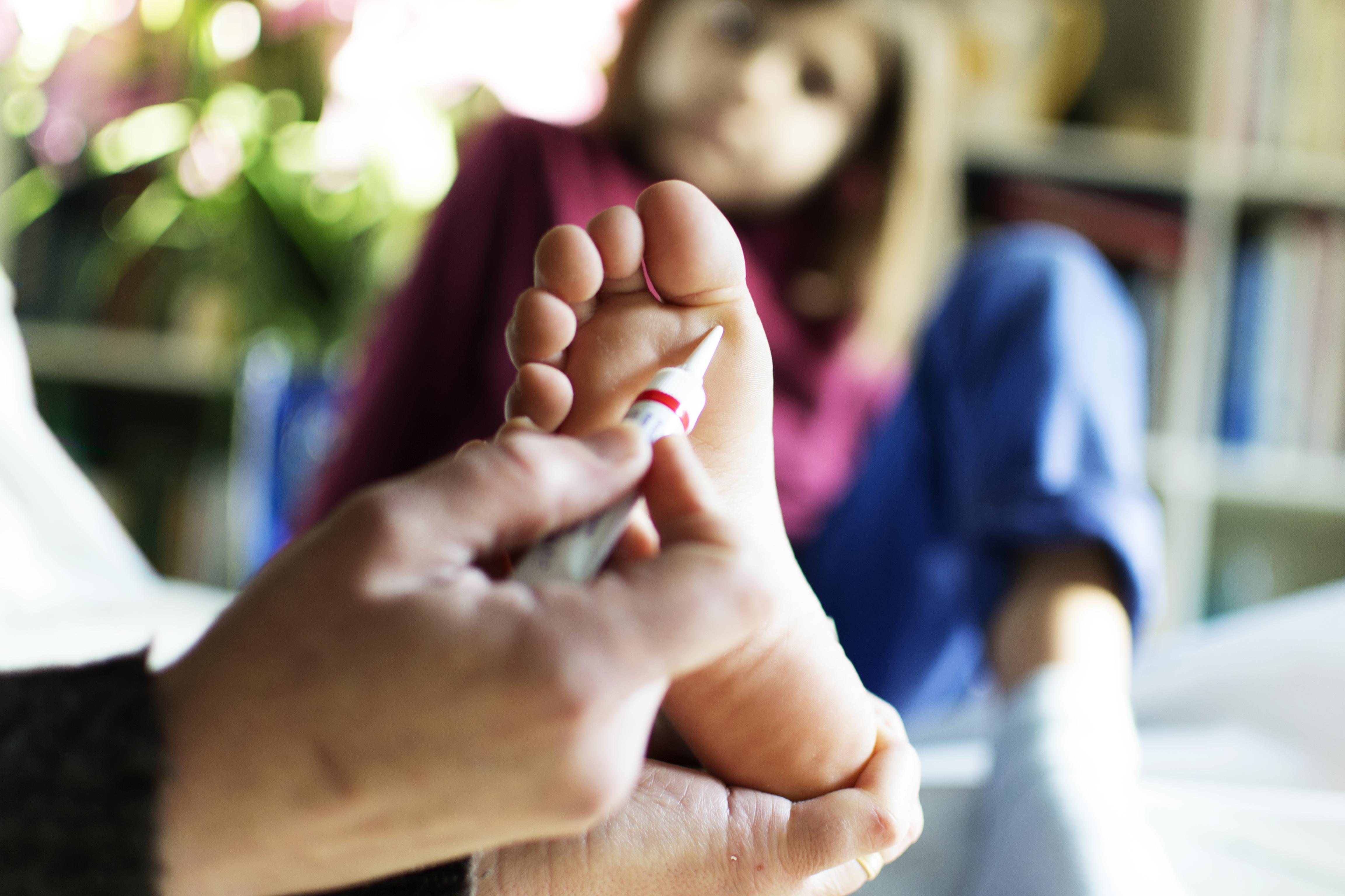 Szemölcsök | BENU Gyógyszertárak