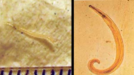 kerekféreg enterobiosis)
