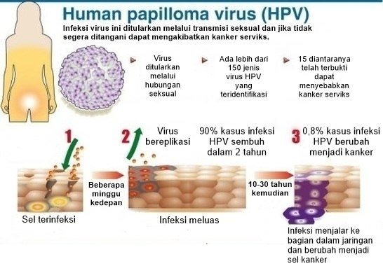 hpv vírus pada kanker serviks