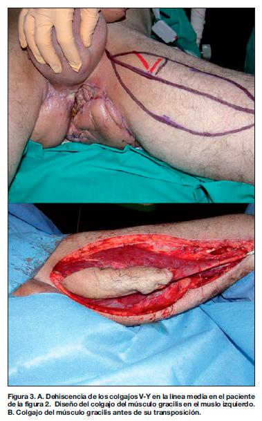 Emberi papillomavírus - tünetek, diagnózis, kezelés