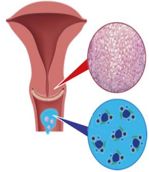 humán papilloma vírus nők kezelésében)