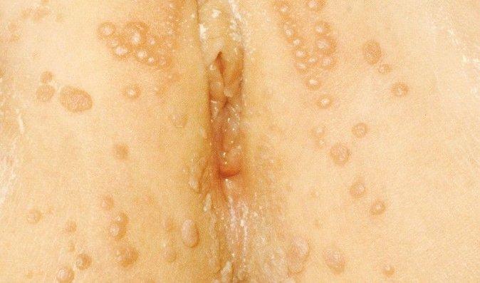 Epidermodysplasia verruciformis histopatologia łuszczycy