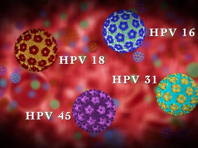 A HPV-fertőzés tünetei nőkben és férfiakban