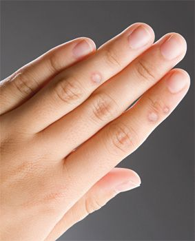 szemölcsök az ujján)