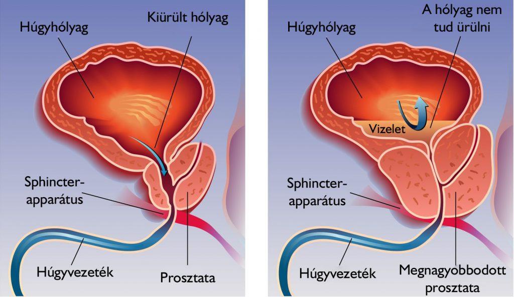 Mi a giardiasis? szemölcsök tapasztalhatók