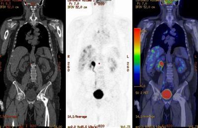 vastagbélrák látható az MRI-ben)