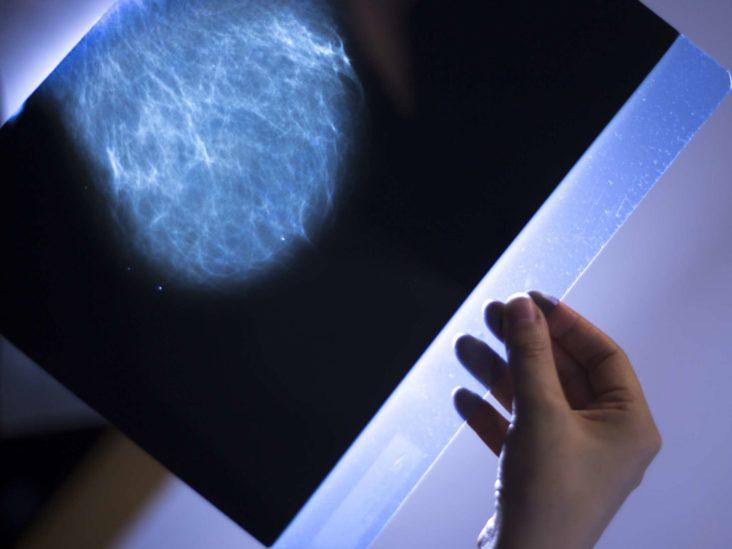Az emlő intra-flow papilloma, típusa, diagnózisa és kezelése - Atópia -