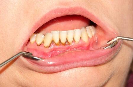 hogyan lehet gyógyítani a száj papillómáját