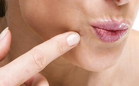 lapos szemölcsök kezelése az arcon)