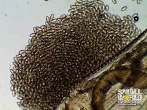 Pinworms női méret. Enterobiasis (pinworms) - Egészség