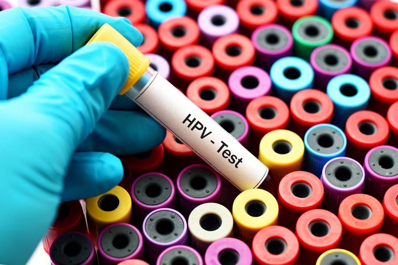 hpv megelőzési kezelés)
