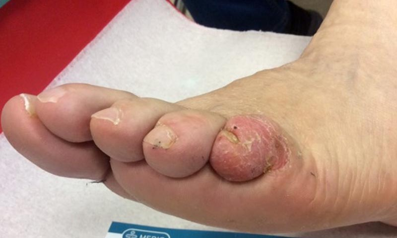 szabad fekély a lábujjak között belső paraziták apicomplexans