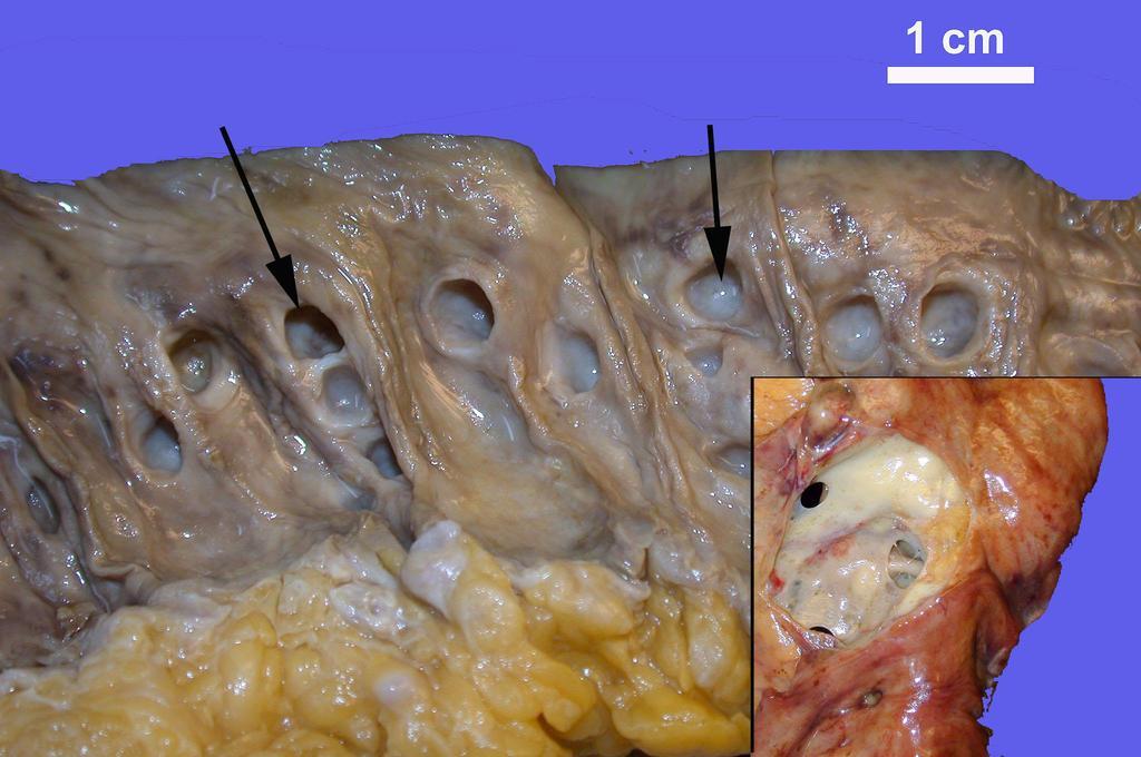 papilloma csecsemőknél genetikai mutációs rák
