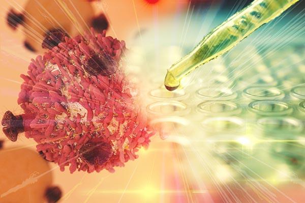 Nyirokrendszeri rák: a limfóma tünetei - EgészségKalauz