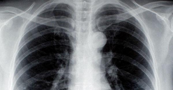 tüdőrák láz tagadja az okát