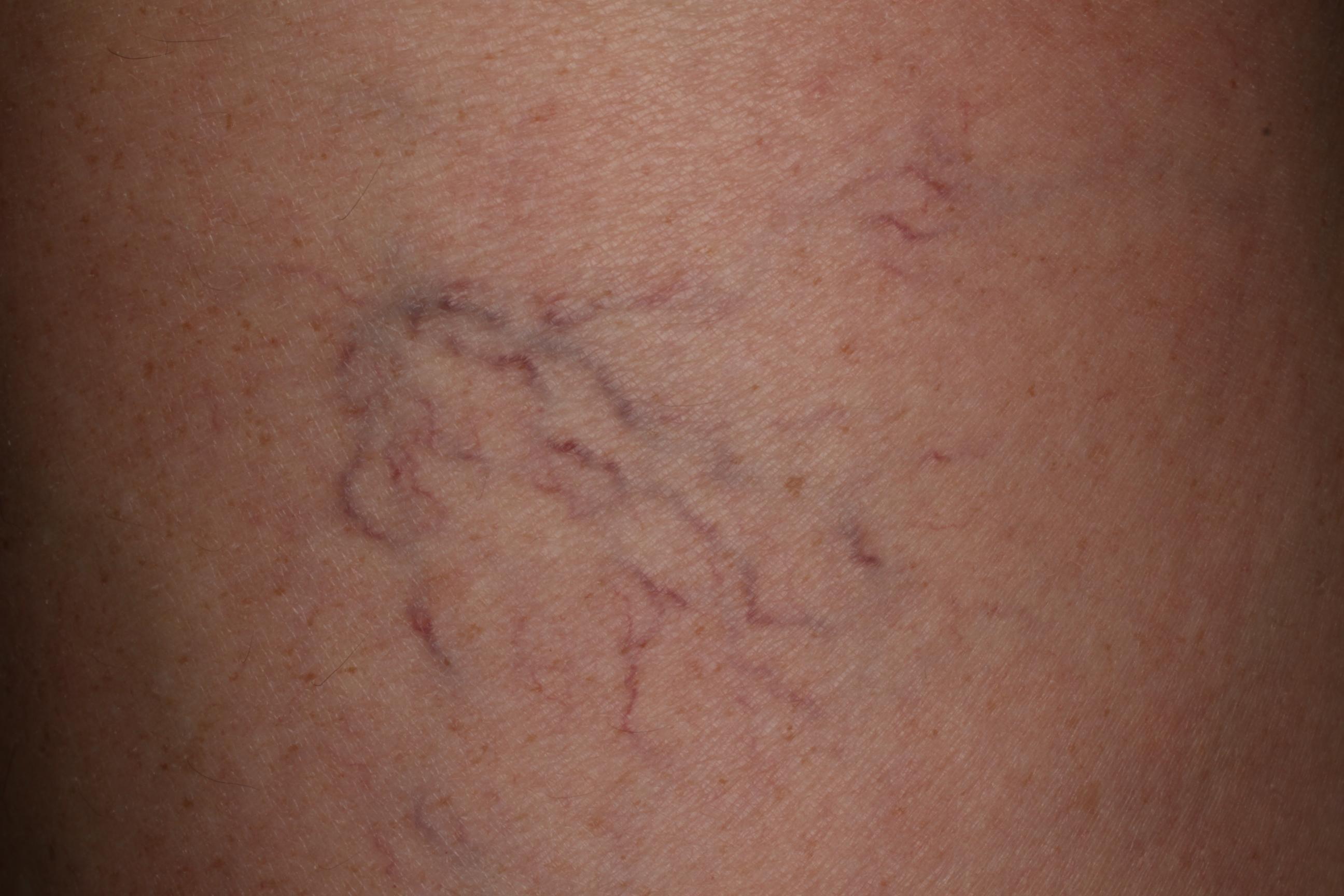 szemölcsök a bőr kezelésén